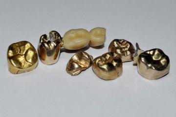 Ankauf von Zahngold